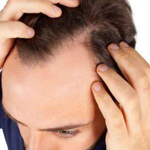 El pelo que se cae de raiz vuelve a crecer?