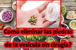 Como eliminar las piedras de la vesícula sin cirugía?
